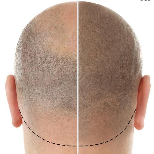 scalp micropigmentation back of man's head